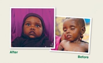 Before and after photo of Nala. Photo: Concern Worldwide.