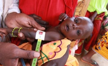 Young child suffering from malnutrition