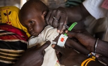 Two year old Eunice*, being screened for malnutrition by staff of Nile Hope, a South Sudanese NGO which is supported by Concern Worldwide. Photo: Kieran McConville/Concern Worldwide.*Name changed for security purposes.
