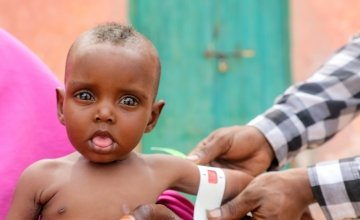 Nala was born underweight and malnourished in Somalia but is getting the help she needs from Concern Worldwide staff