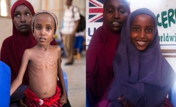 Before and after of Somali refugee girl Yasmiin Hassan, aged five, from arrival at Concern Worldwide clinic in Mogadishu, Somalia, on March 15, 2017 and 12 weeks later after treatment for severe acute malnutrition. Her family fled war and drought.