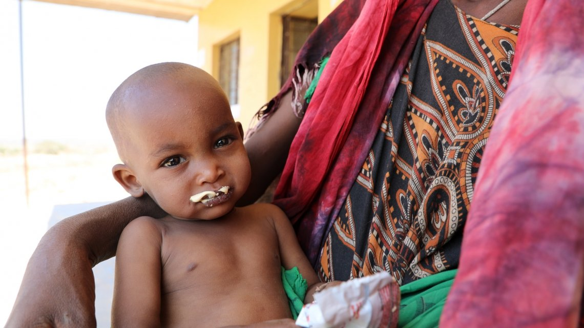 Halimo Hassan (1 year and 2 months) and mother Khayro Ali Hassan (30) in a remote health centre in Filtu, Somali Region. Halimo is being treated for severe acute malnutrition with the support of International NGO Concern Worldwide. Photo: Jennifer Nolan / Concern Worldwide.