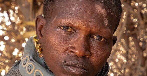 Ng'ikario Ekiru is a pastoralist farmer who has lost most of herd of goats to drought in Turkana, northern Kenya. Photo: Gavin Douglas / Concern Worldwide.