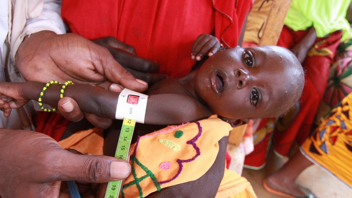 Loubaba Hassane weighs just 4.7kg and her upper arm measures 9cm – a clear and worrying indication of severe acute malnutrition. Photo: Jennifer Nolan/Concern Worldwide.