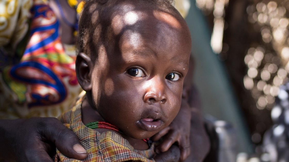 14-month-old Chan Adim Garang is one of twins admitted to the outpatient therapeutic programme run by Concern in Maduany in Aweil North, South Sudan. Photo Kieran McConville/Concern Worldwide.