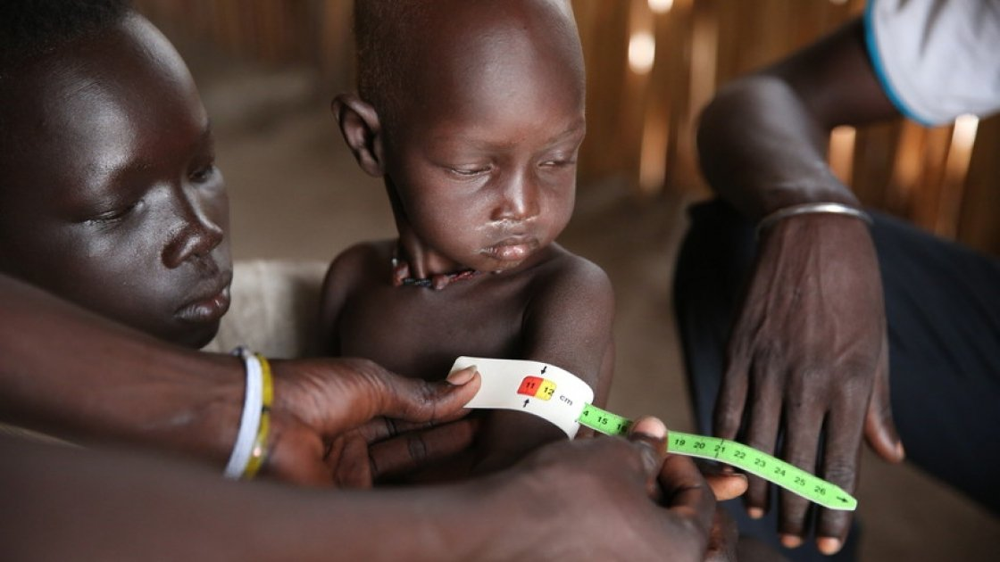 Conflict and displacement has caused widespread malnutrition in Unity State. Photo: Kieran McConville / Concern Worldwide