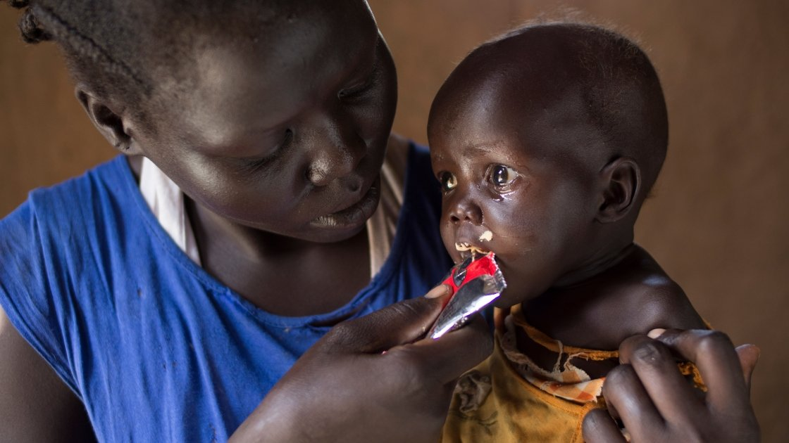 Little Adut is fed vitamin-packed therapeutic paste by her mum Aweng Aken as part of a Concern-funded malnutrition programme. Photo: Kieran McConville, South Sudan, 2016.