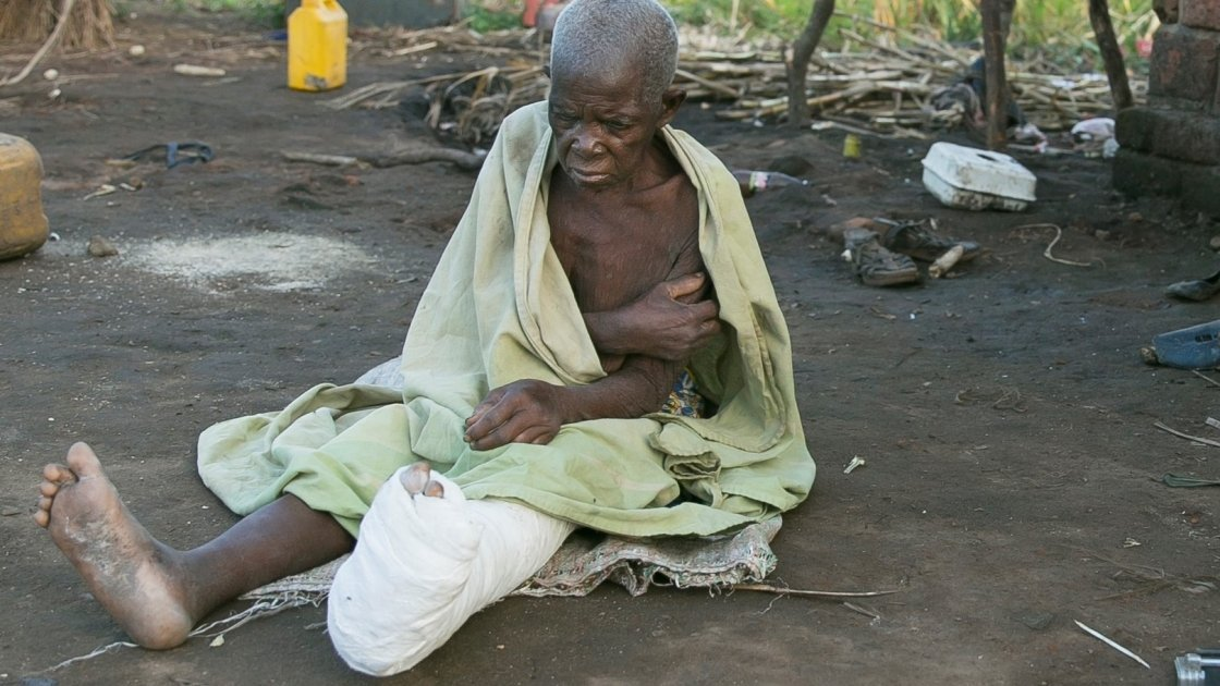 Dominga Gambulene was injured when the family home in Chicuacha village, Lamego collapsed during Cyclone Idai. Photo: Kieran McConville/Concern Worldwide.