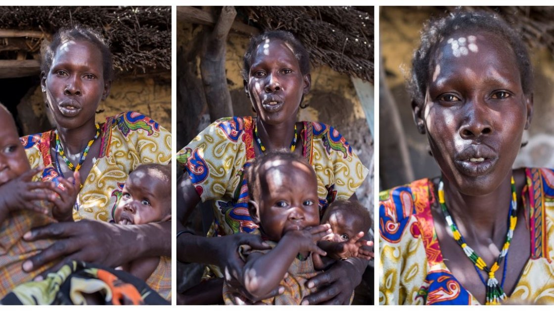Atuil Chok and her fourteen month old twins, who have both been acutely malnourished. Photo: Kieran McConville/Concern Worldwide.