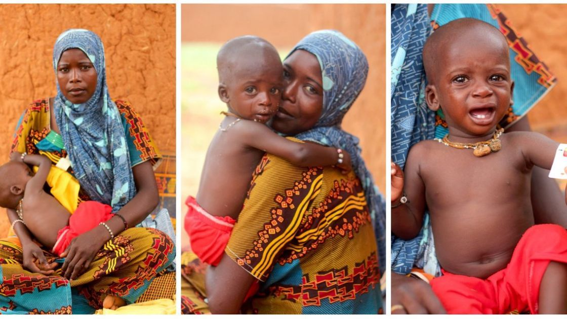 Zarah Issa with her son Youssouf who is suffering from severe malnutrition. Photo: Jennifer Nolan/Concern Worldwide.