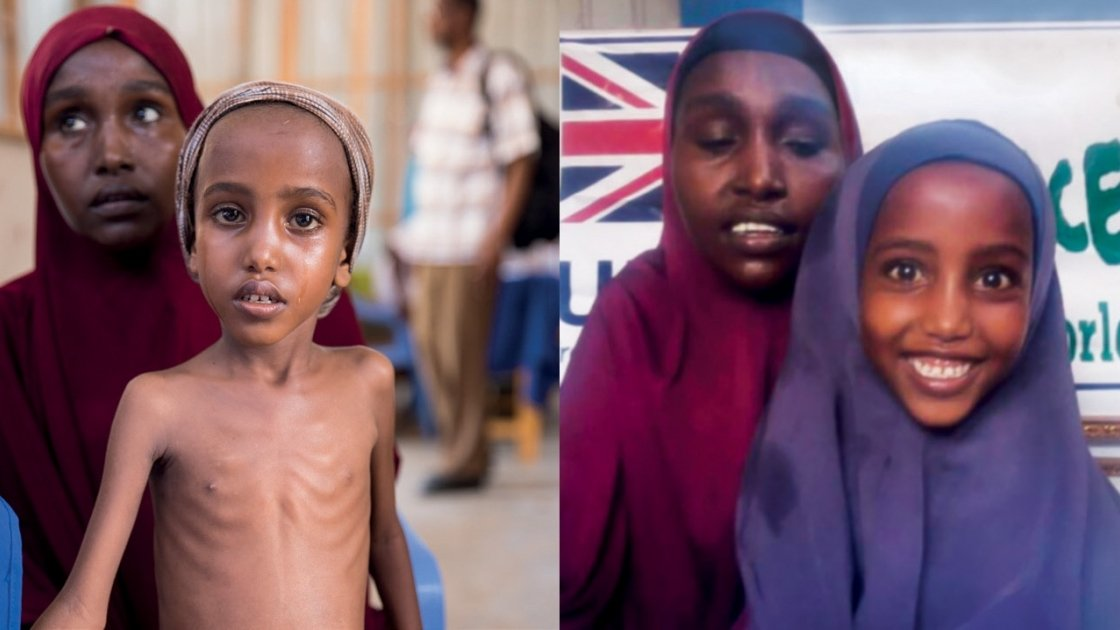 Five-year-old Yasmiin's* life has been transformed due to treatment at a Concern health centre in Mogadishu, Somalia. Photo: Concern Worldwide.