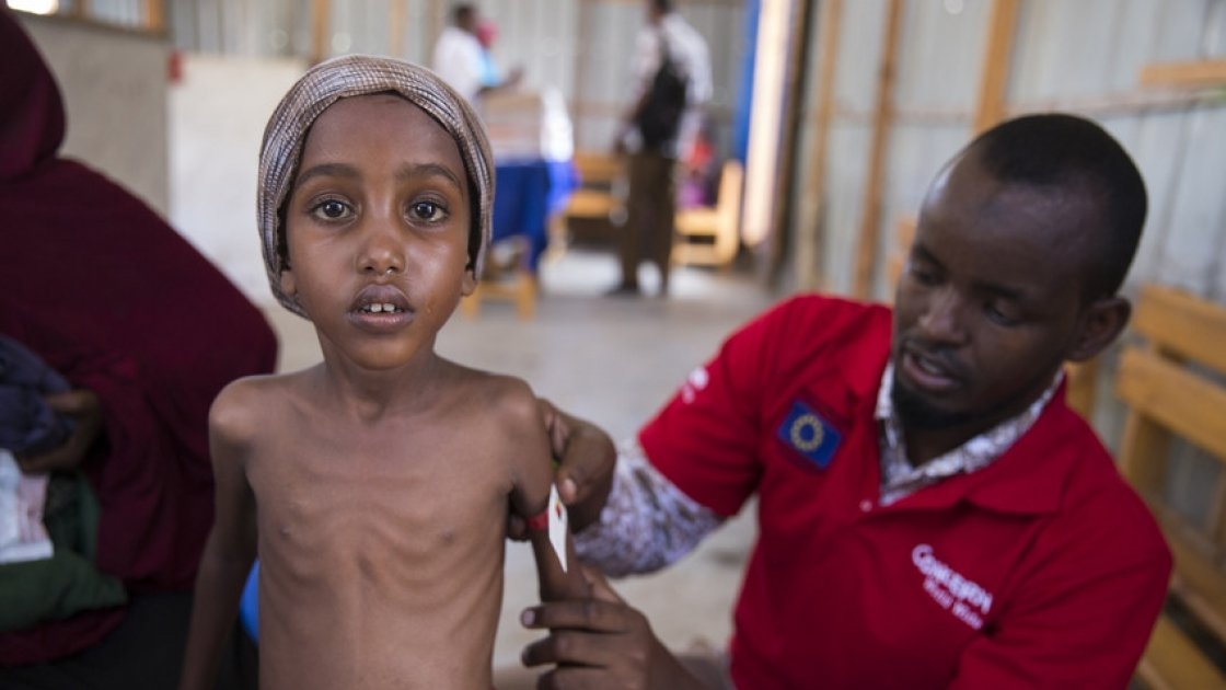 Yasmiin Hassan (5) when she weighed just 12.5kg in March, 2017 being treated by Hashim Jelle at a Concern Worldwide nutrition centre in Mogadishu, Somalia where war and drought displaced over 1.1 million and caused a major food crisis