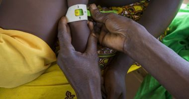 A small child being screened for malnutrition at a Concern supported clinic in the Central African Republic.