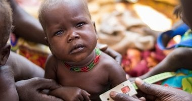 14 month old Chan Adim Garang, a girl, is one of twins admitted to the outpatient therapeutic program (OTP) run by Concern in Maduany in Aweil North, South Sudan. Photo: Kieran McConville / Concern Worldwide
