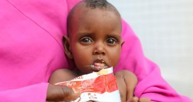 Nine month old Nala pictured here in a Concern supported health centre in Mogadishu, Somalia. Photo: Jennifer Nolan / Concern Worldwide